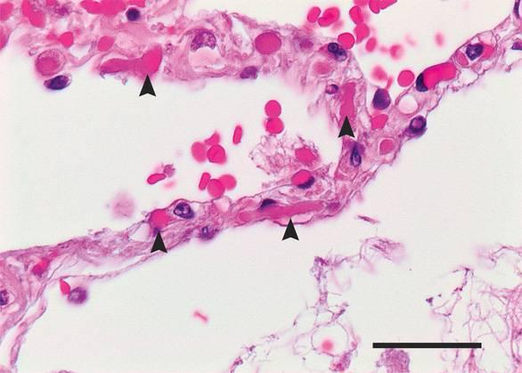 Những phát hiện bất ngờ từ phổi bệnh nhân COVID-19...