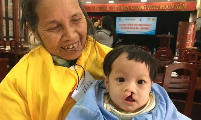 Phẫu thuật miễn phí cho trẻ bị dị tật hàm mặt