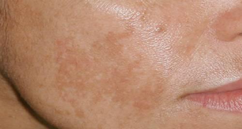 8 thủ phạm gây đổi màu da vùng mặt