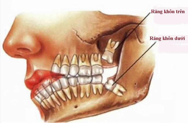 Nhổ răng khôn