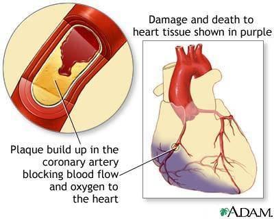 Người thiếu máu cơ tim cục bộ nên ăn uống như thế nào?