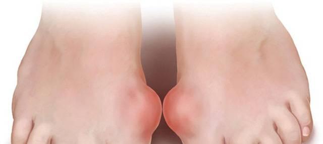 Bệnh gout và cách hạn chế bệnh gout