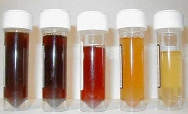 Màu sắc nước tiểu cảnh báo tình trạng sức khỏe