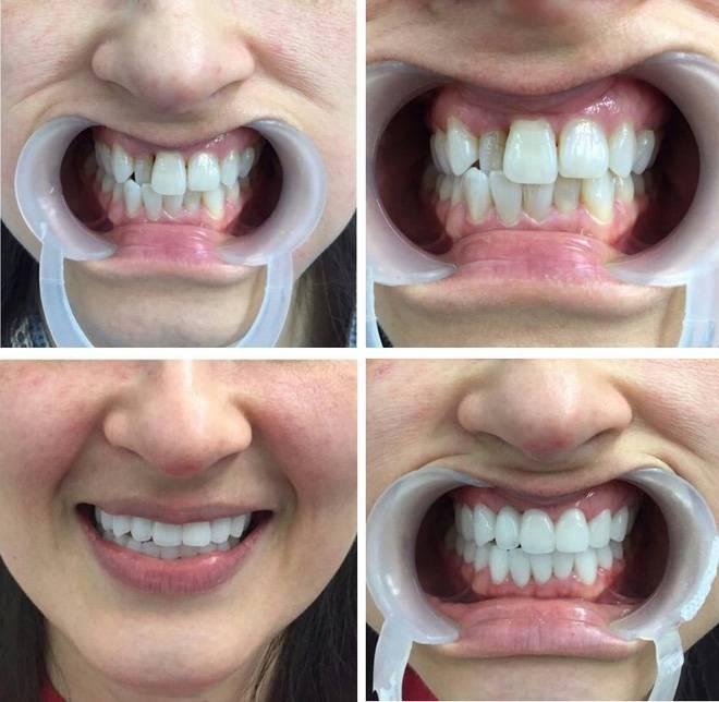 bọc răng sứ_02