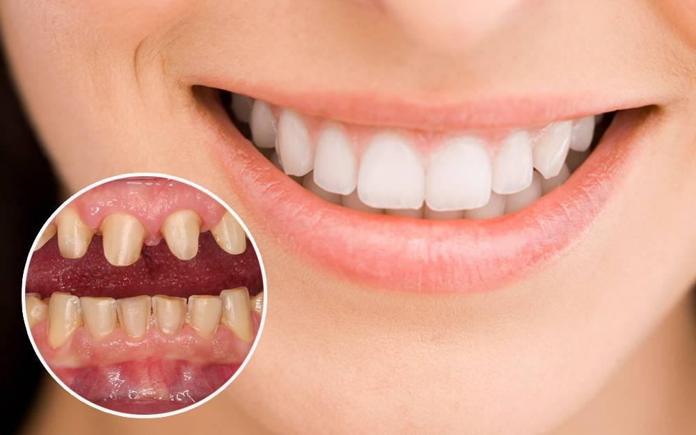 bọc răng sứ_05