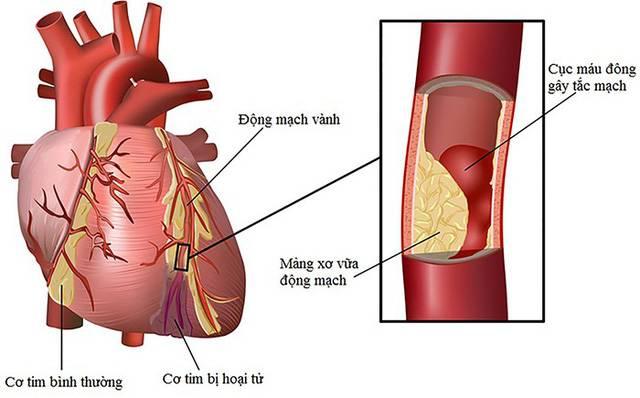 Yếu tố gây nên bệnh lý nhồi máu cơ tim hay bệnh vành tim