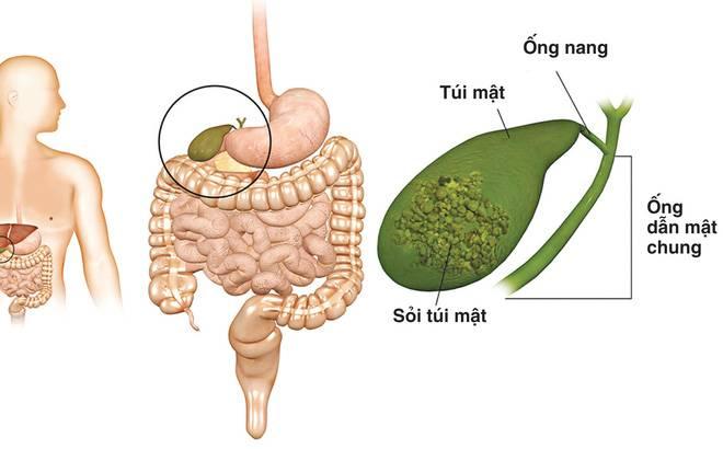 7 dấu hiệu cảnh báo cơ thể bạn đang mắc bệnh sỏi mật