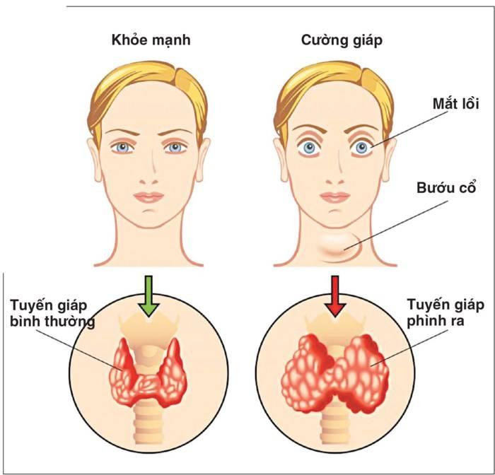 Bệnh bướu cổ và những điều cần biết