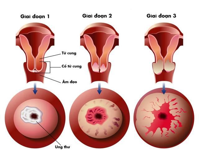 Sàng lọc phát hiện sớm ung thư cổ tử cung