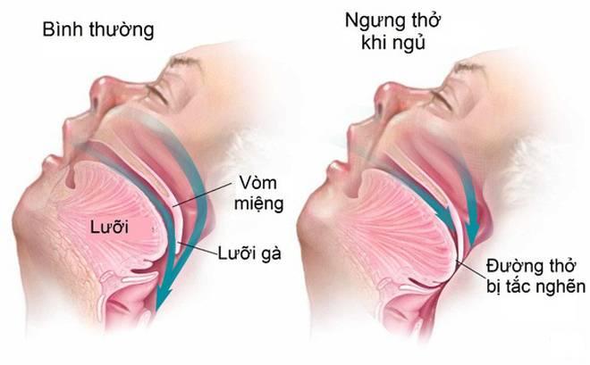 Dấu hiệu nhận biết chứng ngưng thở khi ngủ