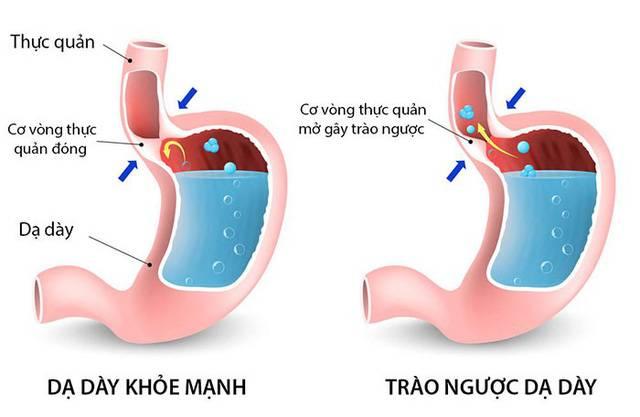 Cẩn thận với bệnh trào ngược dạ dày, thực quản