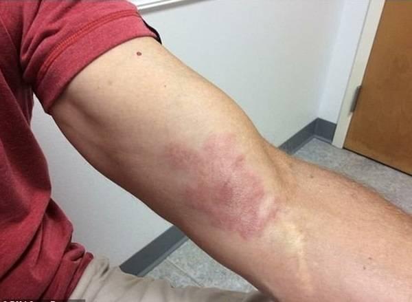 Phát hiện mắc bệnh phong từ vết bầm tím trên da