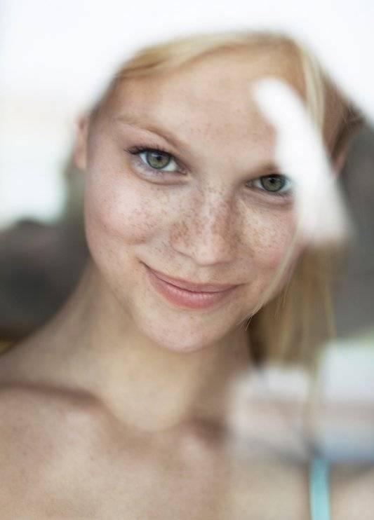 5 nguyên nhân gây ra tàn nhang và cách khắc phục giúp da sáng đẹp