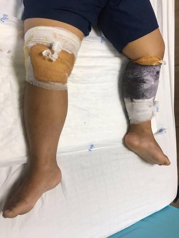 Trẻ 7 tuổi bị chó nhà hàng xóm cắn gần 30 vết thương