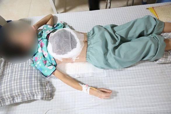 Dùng thuốc nam chữa ung thư, nữ bệnh nhân bị hoại tử một bên ngực