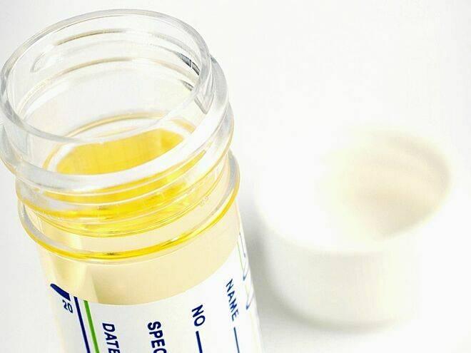 Xét nghiệm nước tiểu tầm soát ung thư cổ tử cung