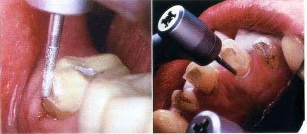 Những biến chứng đáng sợ của việc bọc răng thẩm mỹ